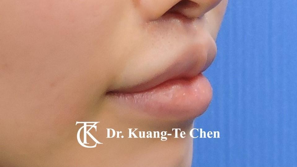 提唇/縮人中手術術後4
