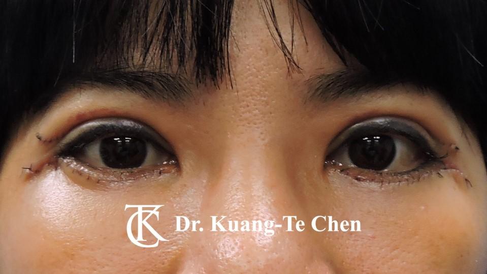 眼袋外開脂肪下推+割雙眼皮Case 2 術後一周-1