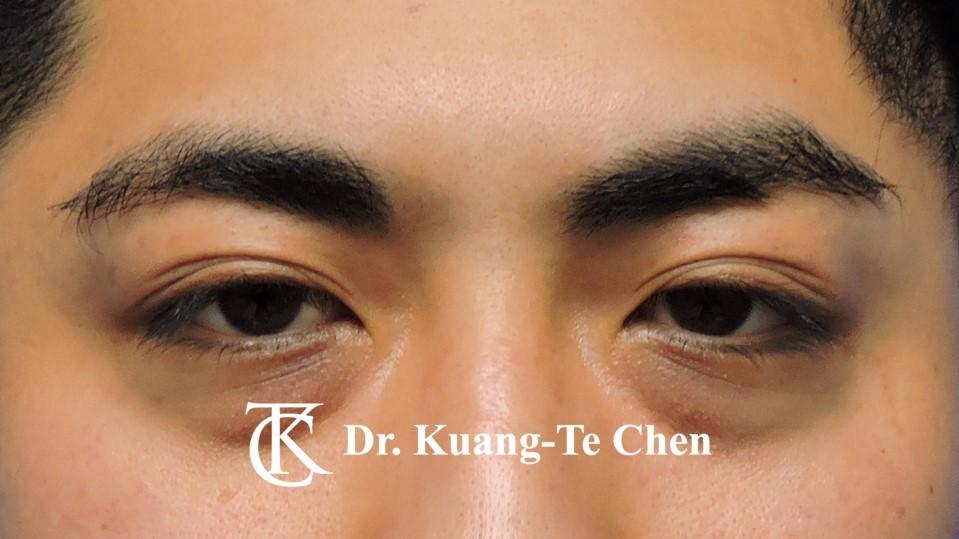 眼袋內開淚溝補脂Case 1 術前-1