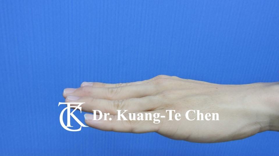 鎚狀指手術Case 2 術後-2