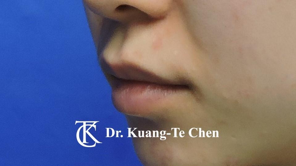 Case 5 上唇唇珠手術前-1