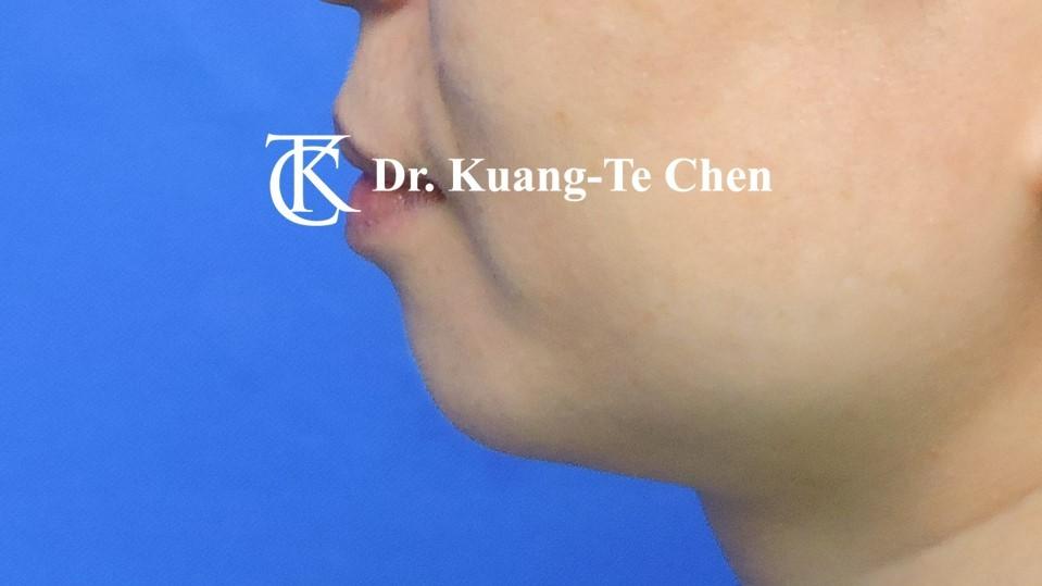 墊下巴手術Case 1術前 -5