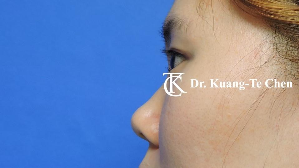 韓式結構式隆鼻 case 1 術前-2