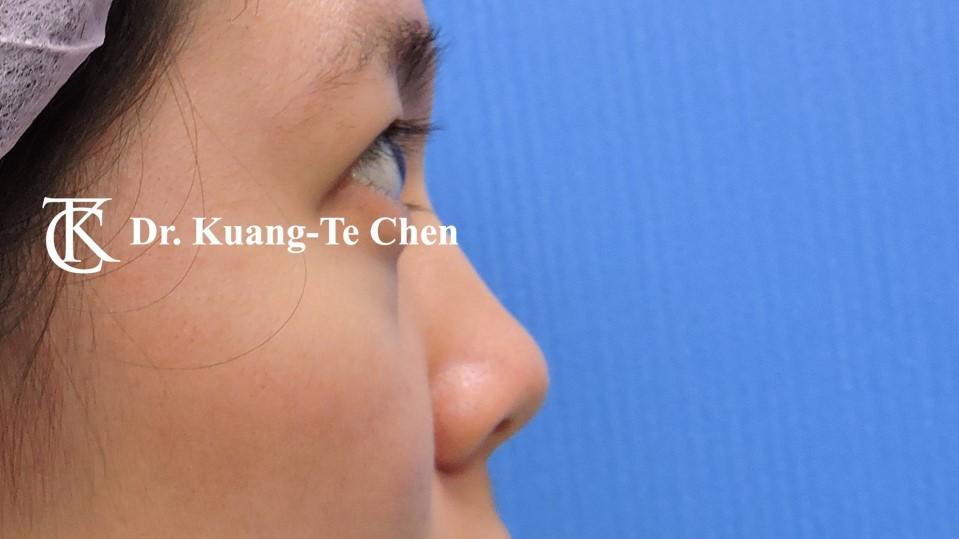 韓式結構式隆鼻 case 3 術前-2