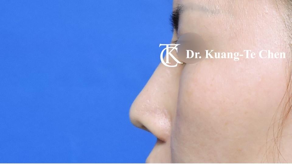 二次隆鼻 Case 1 術前-6