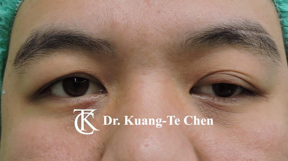 左側中度提眼瞼肌無力術前9