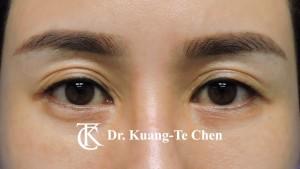 雙眼皮重修術前5