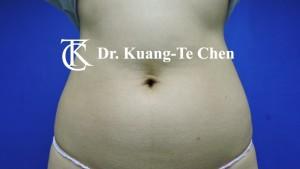 抽脂腰腹環抽術前5