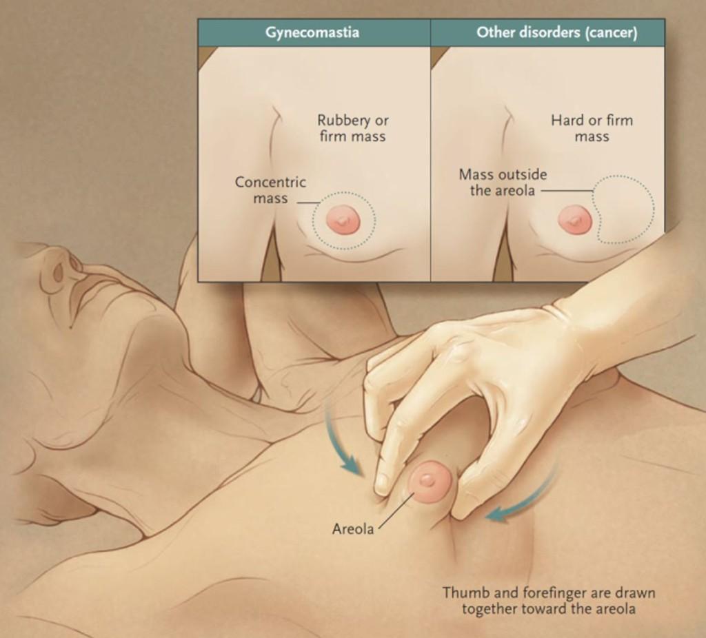 男性女乳症理學檢查