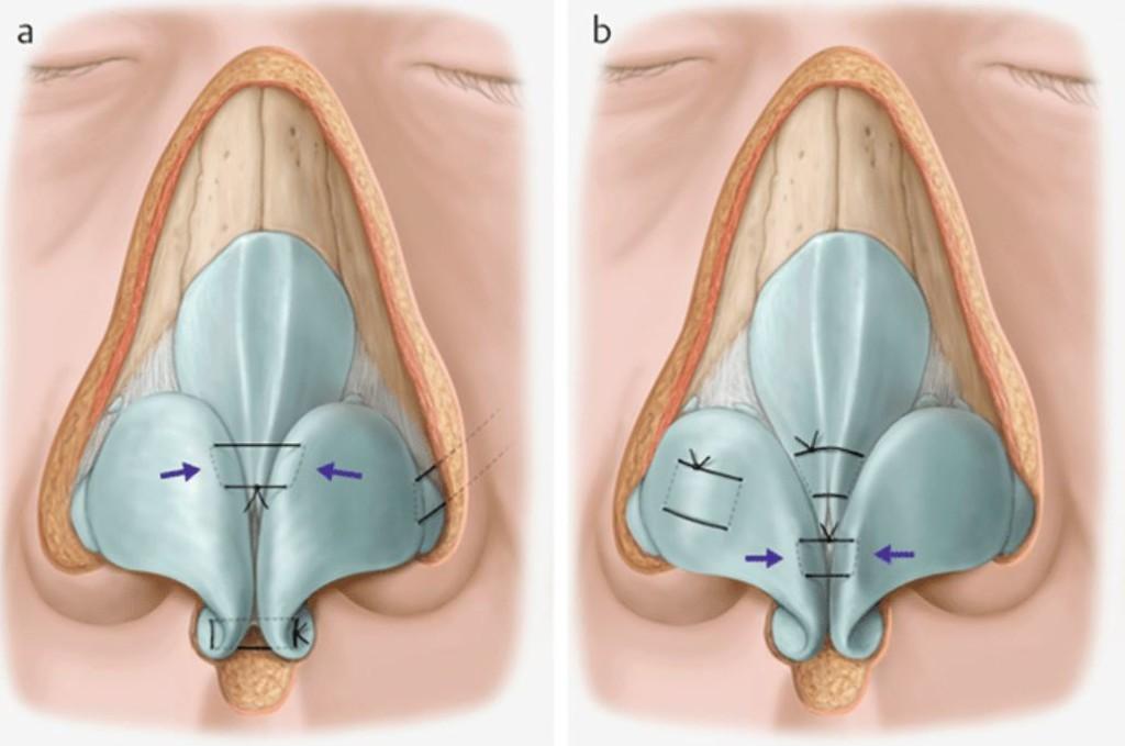 韓式結構式隆鼻軟骨建構