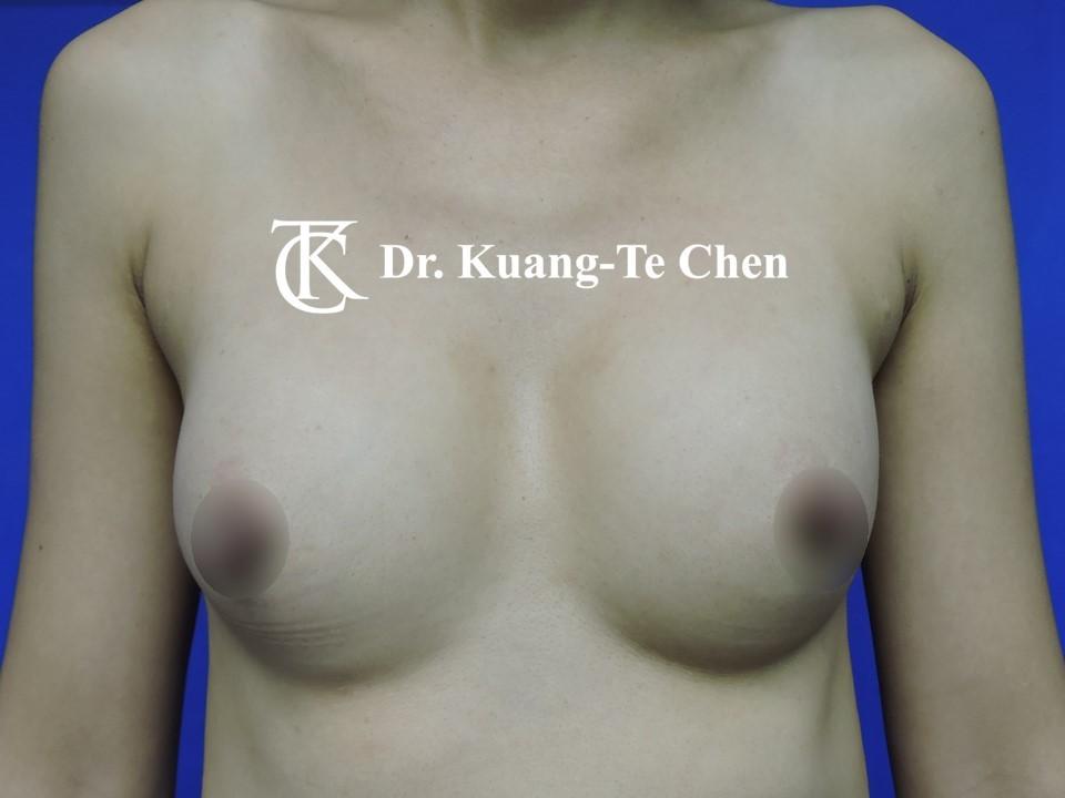 自體脂肪置換義乳術前