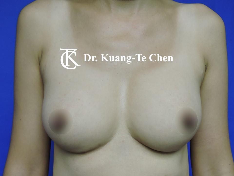 自體脂肪置換義乳術後