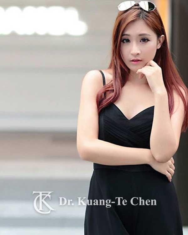 陳廣得醫師隆乳術前