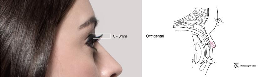 整形眼皮手術說明