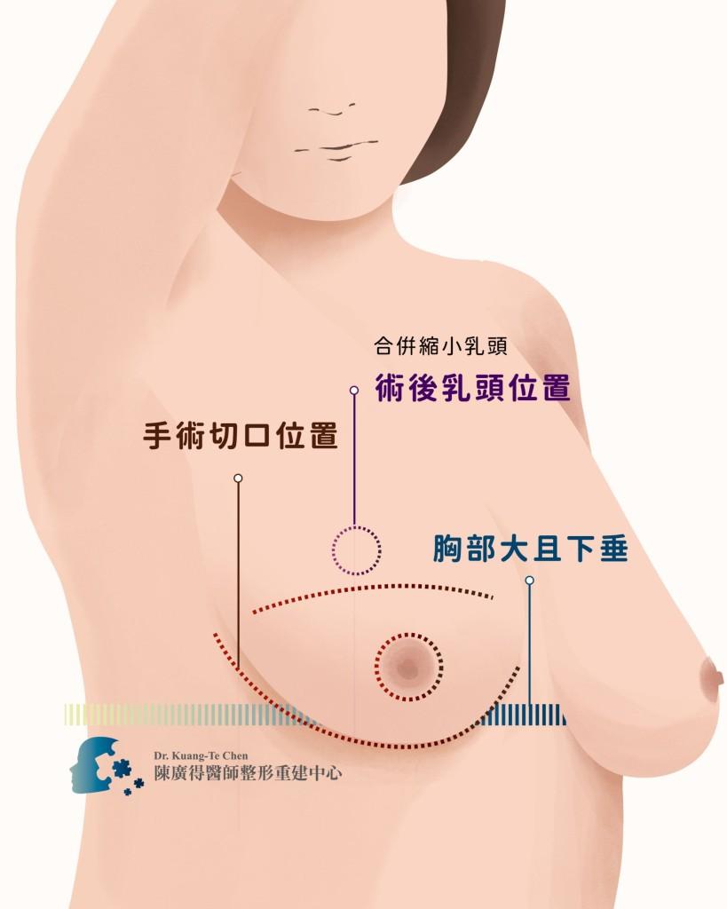 一字形乳房全切除合併乳頭乳暈神經血管保留平胸手術 陳廣得醫師整形重建中心