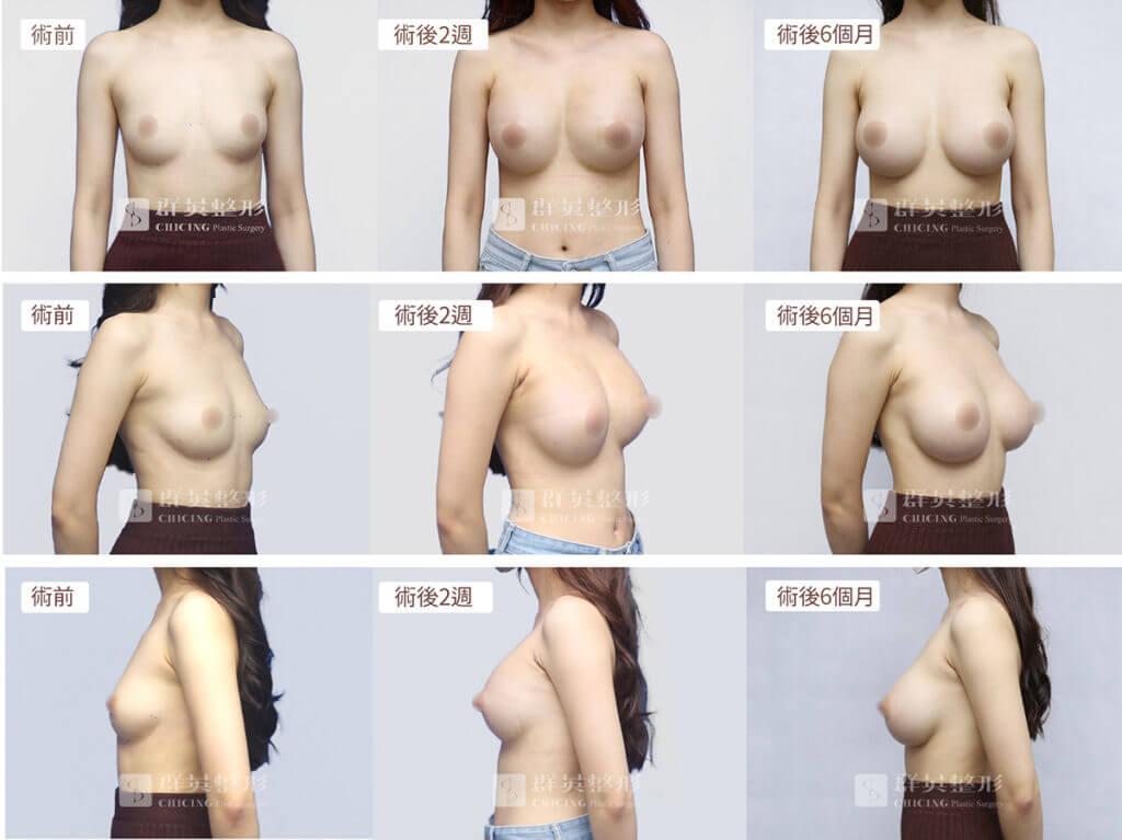 隆乳術前後照_隆乳案例_陳廣得醫師
