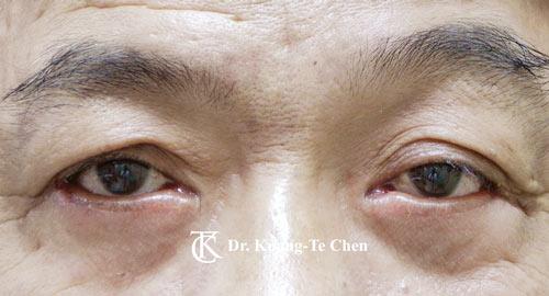 眼瞼外翻治療