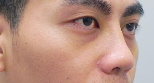 兩段式隆鼻