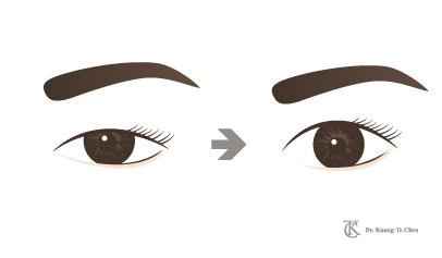 眼皮手術說明