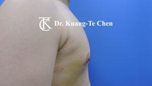 嚴重男性女乳症手術術後9