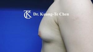 嚴重男性女乳症手術術前8