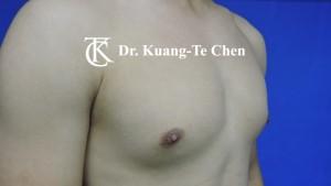 男性女乳症手術術前6