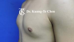 男性女乳症手術術前4
