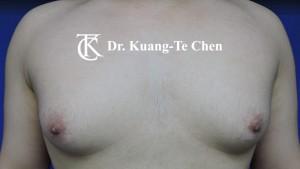 嚴重男性女乳症手術術前7