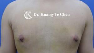 嚴重男性女乳症手術術後7