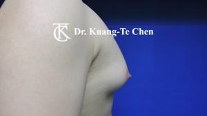 嚴重男性女乳症手術術前9