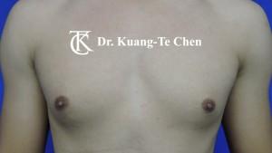 男性女乳症手術術前5