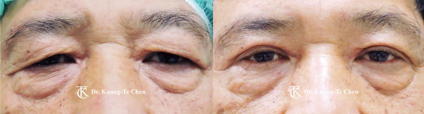 老化性眼皮